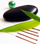 Acupuncture by Thrive @ the New Medicine Group